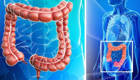 Hrubé črevo a zápal hrubého čreva