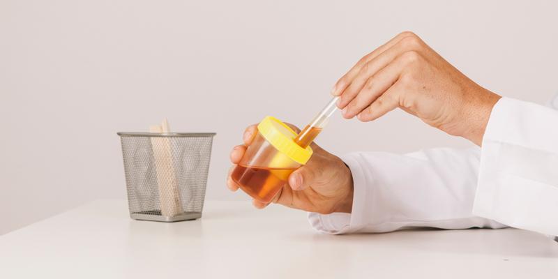 Bielkoviny v moči - strava, príznaky a liečba