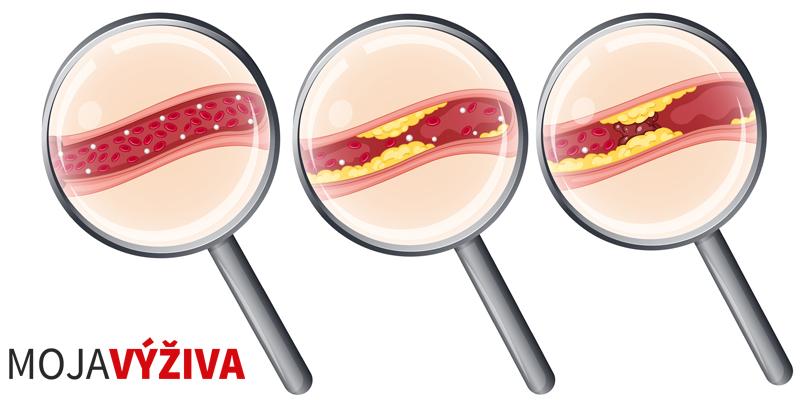 Ateroskleróza – kôrnatenie ciev, liečba, príčiny a strava.