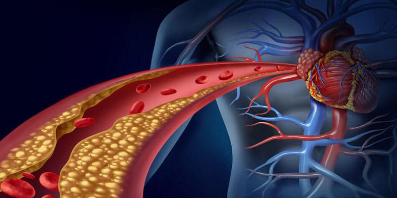 Ateroskleróza – kôrnatenie ciev